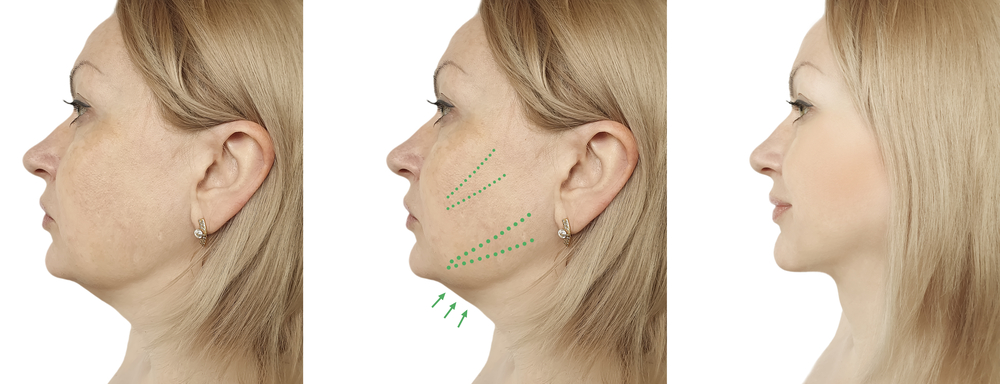 get rid of double chin kybella